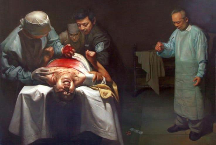 Organ-Ernte organ-harvesting china ersatzteillager Mensch